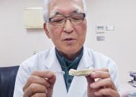 マウスピース(左)を持つ小野さん。これは前歯にかぶせて装着するタイプ。かみ締めを防ぎ、呑気症の改善につながるという