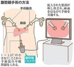 毎日のクリニック:腹腔鏡手術、長短所見極めを 事前の説明と理解が ...