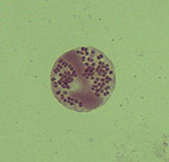 咽頭痛(のどの痛み)を訴えて受診した患者さんの咽頭スワブのグラム染色。好中球(白血球の1種)にピンクの丸い細菌「グラム陰性双球菌」が貪食(どんしょく=飲み込んで消化すること)されている。この例ではその後、培養検査でこの菌が髄膜炎菌であることが確定された=筆者提供