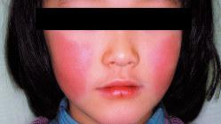 両側の頬に現れた発疹=国立感染症研究所提供