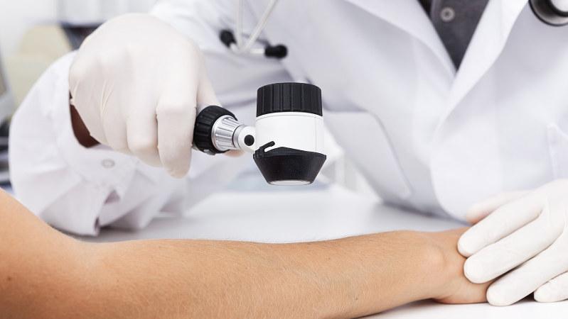 ダーモスコープという機器を使い、メラノーマの診断を行う様子