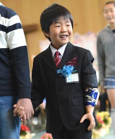 筋電義手:希望を胸に、男児が小...