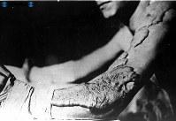 【広島】被爆者の腕にできたケロイド=1945(昭和20)年