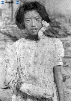 【広島】顔や手に負傷した少女=1945(昭和20)年8月9日