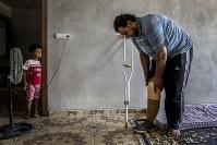 シリア・デリゾールのIS支配地域でレストランを経営していた男性(34)は町を脱出する際に地雷を踏み右足を切断した。3人の幼い息子と一人娘の父親でもある彼は障害を負った体で家族を養わなければならない。心すらも病んでしまった彼は「子どもたちにだけは心配をかけたくない」と家族をおもんぱかっていた。左は三男のアナス君(6)=2016年8月31日、トルコ・シャンルウルファで写真家の川畑嘉文さん撮影