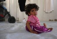 生まれつき背骨と左足の骨がゆがんでいるゼイナブちゃん(4)。自力で歩くことはできず、身長は2歳の妹と変わらない=ヨルダン・ザルカ県のアズラック難民キャンプで2016年10月4日、久保玲撮影