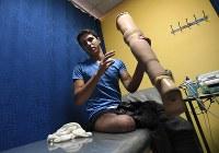 病院で義足を取り付けるアブドゥルサラーム・アルハリーリさん(19)。砲弾の破片が直撃し、右脚を切断した。アンマンの病院で義足を作り、ふさぎ込んだ気分が消えた。パラリンピックの動画を見て「スポーツ用の義足が欲しい。いつか挑戦してみたい」と目を輝かせた=ヨルダン・アンマンで2016年10月12日、久保玲撮影