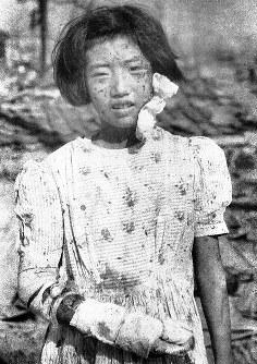爆風に吹き飛ばされたガラスや砂で顔一面に負傷した少女=詳細な撮影場所は不明1945年8月9日、広島平和記念資料館(原爆資料館)検証