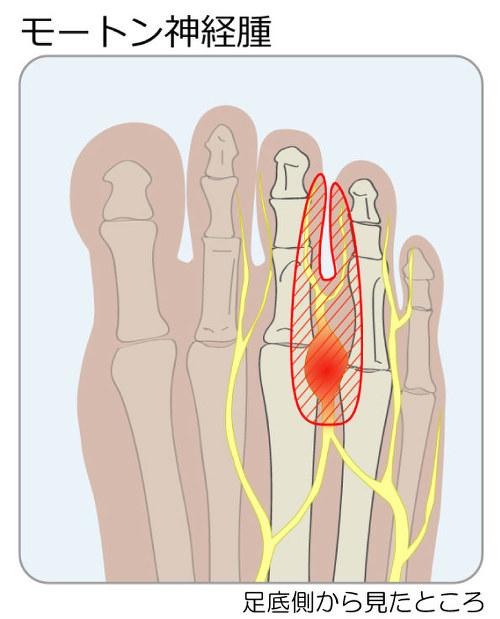 腫れ 付け根 足 指