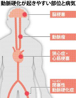 動脈硬化がおきやすい部位と病気