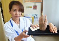 顧客それぞれに合わせて、リアルに再現されたシリコーン製の指や手を持つ福島さん=大阪市北区の工房アルテで、亀田早苗撮影