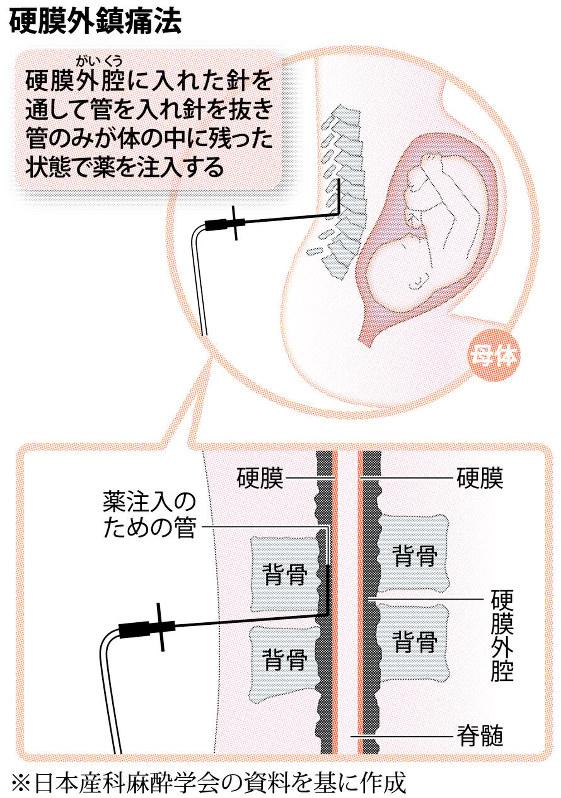 リスク 無痛 分娩 日本の「無痛分娩」リスクが欧米に比べて高い理由
