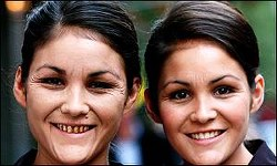 図2:たばこが老化に与える影響。22歳の双生児が喫煙者(左)と非喫煙者(右)だった場合、40歳になった時にどうなるかをシミュレーションしたもの。英BBCの2001年9月27日の報道より引用
