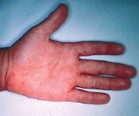 This undated file photo provided by the National Institute of Infectious Diseases shows the hand of a person infected with hand, foot and mouth disease.