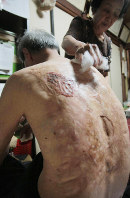 Sumiteru Taniguchi has medical cream applied to his back after taking a bath on July 24, 2009. (Mainichi)