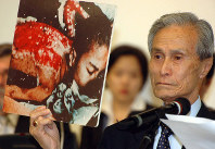 Sumiteru Taniguchi shows a photo in which he undergoes treatment for burns he suffered to his entire back in the Aug. 9, 1945 atomic bombing of Nagasaki, in this May 7, 2010 file photo taken at the U.N. headquarters in New York. (Mainichi)
