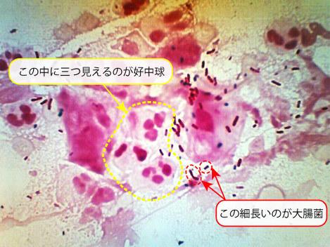 膀胱炎患者の尿沈渣のグラム染色像=筆者提供