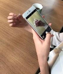 自分の指をスマートフォンで撮影し、画像を拡大することで指の状態をチェックする「ハンドセルフィー」。野村有子院長は「指の状態に気づくことで、早めのケアにつなげてほしい」と話す=ユースキン製薬提供