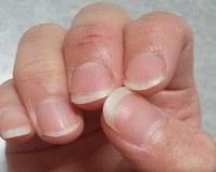 「ハンドセルフィー」で撮影した20代女性の指。関節に負担がかかり、中指の第1関節がひび割れている=ユースキン製薬提供