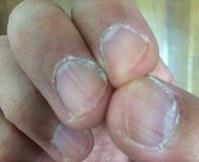 ハンドセルフィーで撮影した40代男性の指。爪の周りが硬くなって柔軟性がなくなっている=ユースキン製薬提供