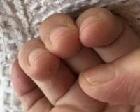 「ハンドセルフィー」で撮影した50代女性の指。乾燥と摩擦などの刺激で薬指の皮膚がめくれて、ささくれている=ユースキン製薬提供