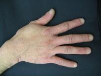 手荒れ重症期の例。赤くはれたり、じくじくしてかゆくなったりする=ユースキン製薬提供