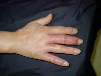 手荒れ最重症期の例。猛烈にかゆくなったり、水ぶくれができたりする=ユースキン製薬提供
