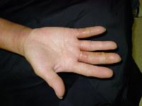 手荒れ最重症期の例。黄色い汁が出たり、痛くて指が曲げられなくなったりする=ユースキン製薬提供