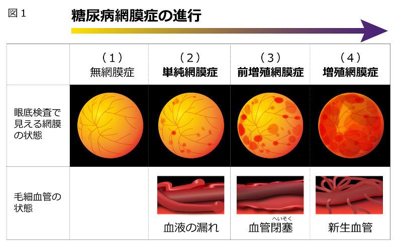 症 糖尿病 網膜