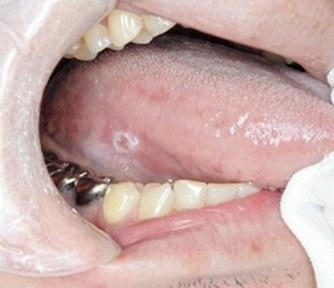 白い斑点が口腔がんの初期症状=柴原孝彦さん提供