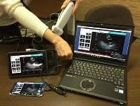 エコノミークラス症候群の遠隔診断に用いるポータブルのエコーと伝送システム。現場で使う左側の端末と、医師が見る右側のパソコンに、同じ動画が映し出される=大阪府吹田市の国立循環器病研究センターで2017年10月、池田知広撮影