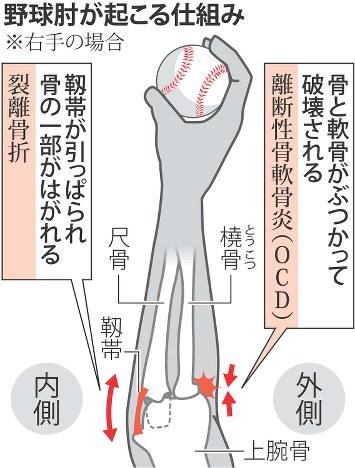 7 - 【医学】ドミニカ 少ない関節障害「野球肘」 背景に日本と異なる少年野球指導法[04/08]