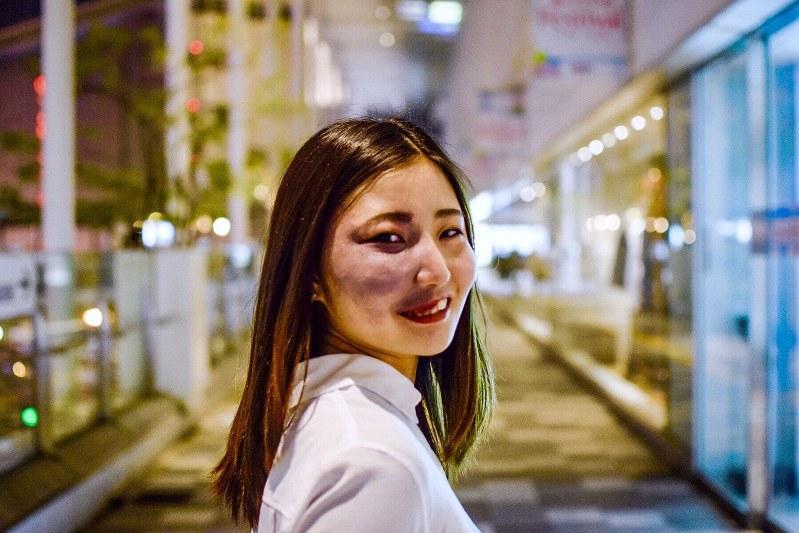 性_見た目:アザがある、それも私21歳女性がインスタで顔写真を