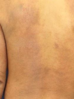 アトピー性皮膚炎患者の背中に生じた炎症の様子=佐伯秀久・日本医大教授提供