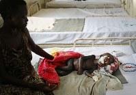 栄養失調でベッドに横たわるメアリー・スティマちゃん(1)。あばら骨が浮き上がり、顔や腕顔や腕の黒ずんだ皮膚はたんぱく質が欠乏する栄養失調の症状の1つという。この2日後、メアリーちゃんはその短い生涯を終えた=南スーダン・ジュバで2018年4月24日、小川昌宏撮影