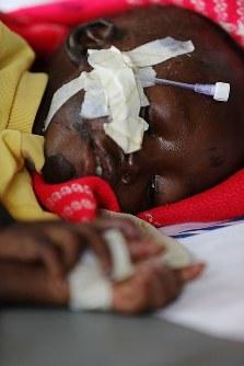 重度の栄養失調で入院するメアリー・スティマちゃん(1)。時折、うっすらと目を開けるが、その瞳に力はない。この2日後、メアリーちゃんは亡くなった=南スーダン・ジュバで2018年4月24日、小川昌宏撮影