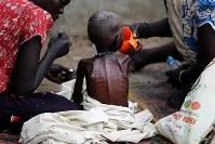 重度の栄養失調でやせ細るザンデ・エリアちゃん(5)=中央。背中にあばら骨が浮きでる。テント内のベッドは暑く、寝ていられないため、日中は病院の敷地内にゴザをしき、母マリ・ケジさん(左)らと外で過ごす=南スーダン・ジュバで2018年4月24日、小川昌宏撮影