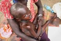 栄養失調でやせ細るザンデ・エリアちゃん(5)。やせ細った体だが、するどい視線でカメラを見つめた=南スーダン・ジュバで2018年4月24日、小川昌宏撮影