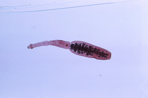 犬から見つかった寄生虫エキノコックスの成体の顕微鏡写真=米疾病対策センターのイメージライブラリーより