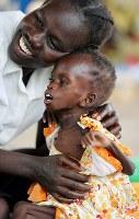 重度の栄養失調となり、やせ細ったアチョコ・マトゥワちゃん(下)。危険な状態だが、母アゴック・クウェックさんは「元気になって成長したら、学校に通わせたい」とアチョコちゃんを抱き寄せ、いとおしそうに頰を寄せた=南スーダン・ジュバで2018年4月24日、小川昌宏撮影