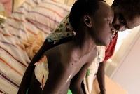 4日前に右胸を打たれ、取材の前日に搬送されてきたトゥト・コングさん。ベッドの上で母ニャルヒン・ラムさんに寄りかかり、視線は宙をさまよった=南スーダン・ガニエルで2018年4月27日、小川昌宏撮影