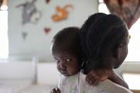 栄養失調となり、診察を待ちながら母ソフィア・アキリさんにすがりつくアディアン・トゥンくん(3)。顔や腕の皮膚がやけただれたように見えるが、栄養失調の症状の1つという=南スーダン・ジュバで2018年4月24日、小川昌宏撮影