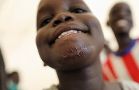 ニャック・ニャガルワさん(9)は3カ月前に、あごと両腕に計3発の弾丸を浴びた。あごには大きな傷跡が残る。両腕には包帯が巻かれ、今も入院生活を送るが、友人と笑顔で院内を駆け回る=南スーダン・ガニエルで2018年4月27日、小川昌宏撮影