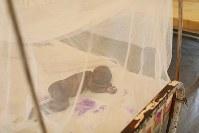 病院に設置されたテントの蚊帳の中で眠るリタ・ジュマちゃん(3)。手や顔にやけどの跡のような症状が見られるが、栄養失調の症状の1つという=南スーダン・ジュバで2018年4月26日、小川昌宏撮影