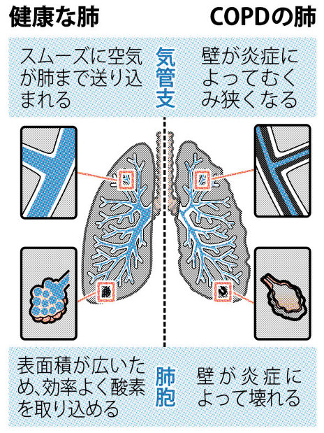 疾患 慢性 閉塞 性 肺