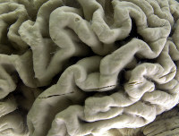 This Oct. 7, 2003 file photo shows a closeup of a human brain affected by Alzheimer's disease on display at the Museum of Neuroanatomy at the University at Buffalo in Buffalo, N.Y. (AP Photo/David Duprey)