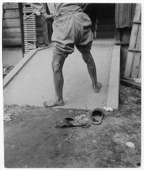 熱線により足をやけどした男性=ゲイル・ヨシカワさん提供