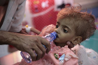 In this Sept. 27, 2018, file photo, a father gives water to his malnourished daughter at a feeding center in a hospital in Hodeida, Yemen. (AP Photo/Hani Mohammed)