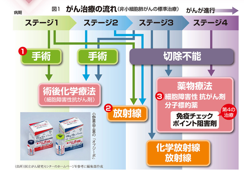 図1 がん治療の流れ(非小細胞肺がんの標準治療)