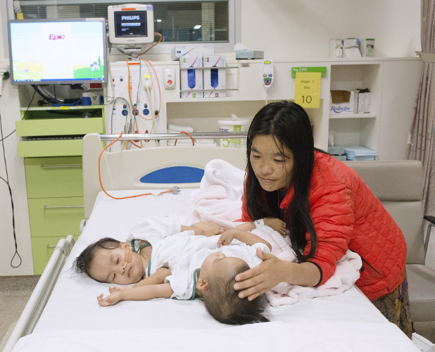 Bhutanese Conjoined Twins Successfully Separated In Australia